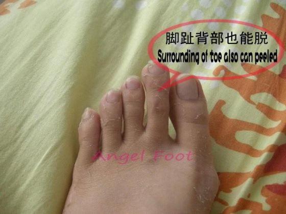 Angel Foot