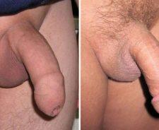 Circumcised Vs Uncircumcised Penis