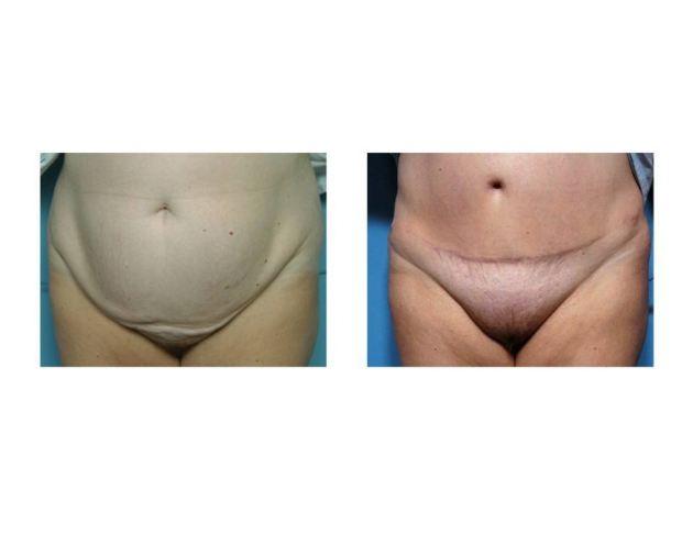 Nude Girl Surgery Scar