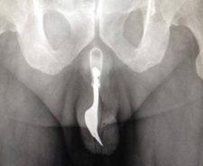 Penis Stuck Inside Body